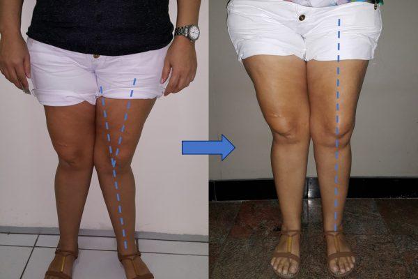 Osteotomia de Realinhamento do Fêmur