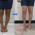 Osteotomia de Realinhamento da Tíbia
